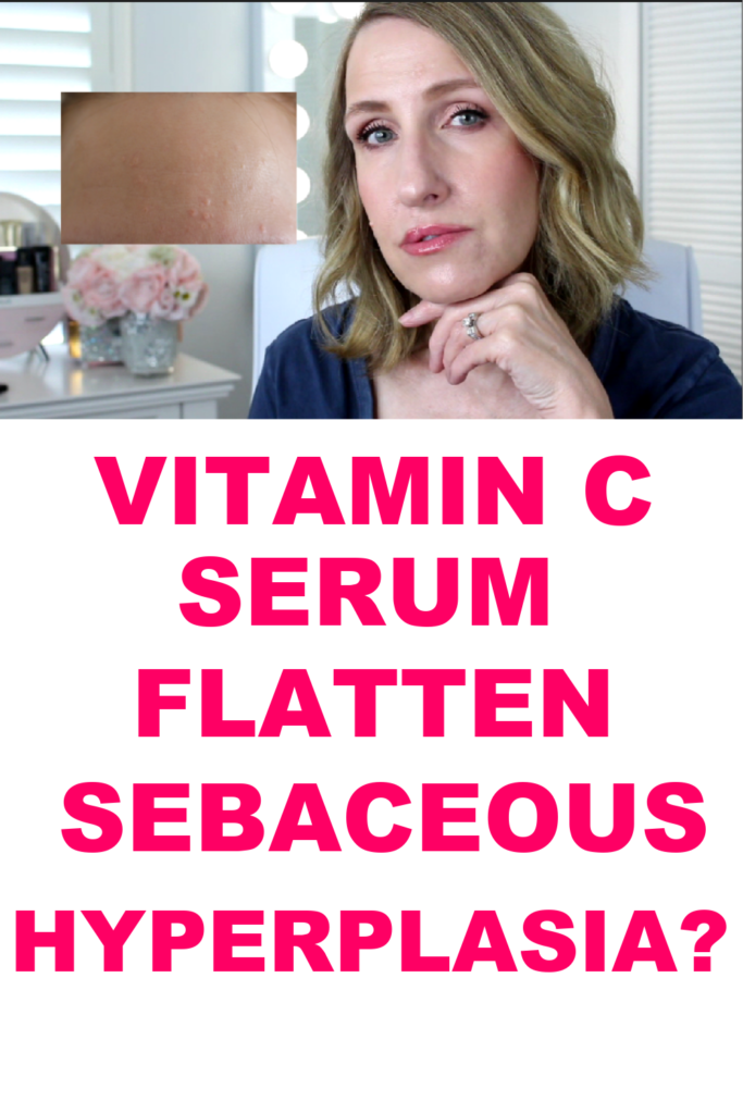 SEBACEOUS HYPERPLASIA TREATMENT?