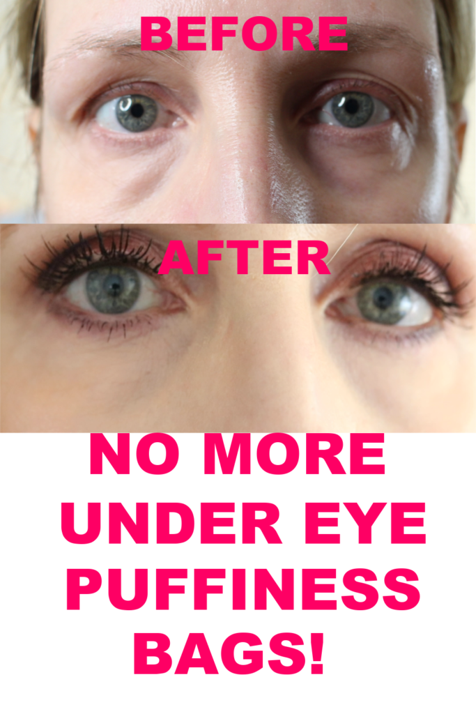 HOW TO GET RID OF UNDER EYE PUFFINESS AND BAGS!