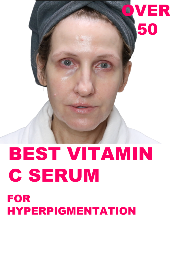 BEST VITAMIN C FOR HYPERPIGMENTATION